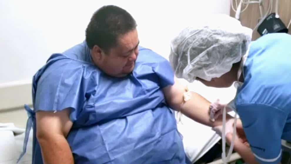 bypass gastrico obesidad